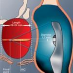 Alternative prostate cancer treatments